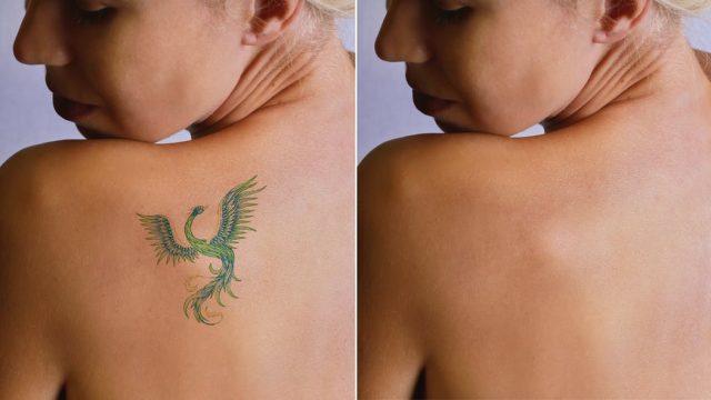 tatouage-effacer